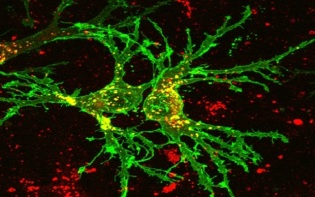 Neurons are electrically excitable cells that transmit information through electrical and chemical signals. They are the main components of the nervous system, including the brain and spinal cord. Credit@TrajkovicEtAl.(2006)J.CellBiol.viaFlickr