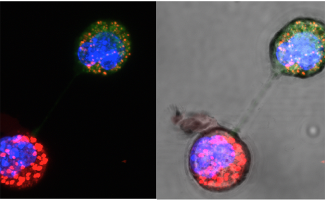 Dark field image (left) highlights the transfer of fluorescent mitochondria to breast cancer cells lacking mitochondrial DNA. Bright field (right) has sufficient light to see the connecting nanotube. Credit@MalaghanInstitute.