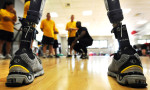 A new prosthetic limb design that anchors directly onto the bone provides more comfort and increased mobility - it has just been approved for use in the UK by the FDA. Credit@U.S. Department of Defense Current Photos/Flickr