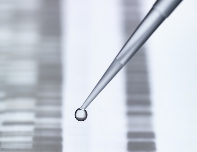 Pipetting DNA sample onto DNA sequencing gel